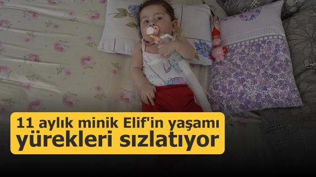 11 aylık minik Elif'in yaşamı yürekleri sızlatıyor