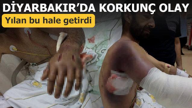 Diyarbakır'da korkunç olay! Yılan bu hale getirdi