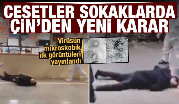 Son dakika: Cesetler sokaklarda! Virüsün mikroskobik görüntüleri geldi